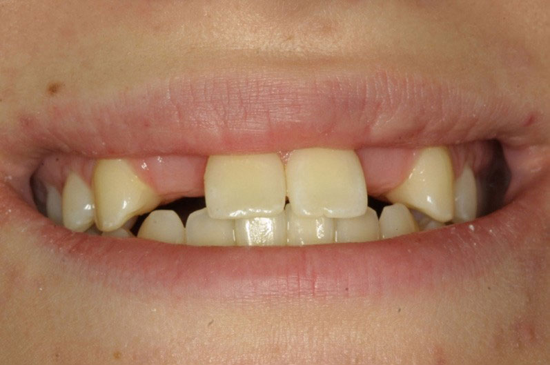 Arizona Institue for Periodontics and Dental Implants Aesthetic Dental Implant 13 Before