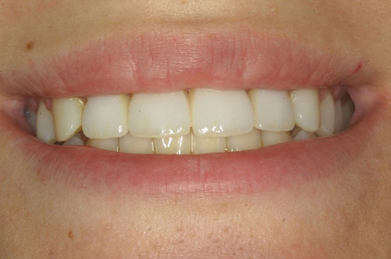 Arizona Institue for Periodontics and Dental Implants Aesthetic Dental Implant 14 After