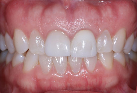 Arizona Institue for Periodontics and Dental Implants Aesthetic Smile Enhancement 21 Before