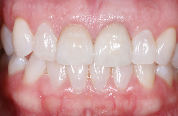 Arizona Institue for Periodontics and Dental Implants Aesthetic Smile Enhancement 22 After