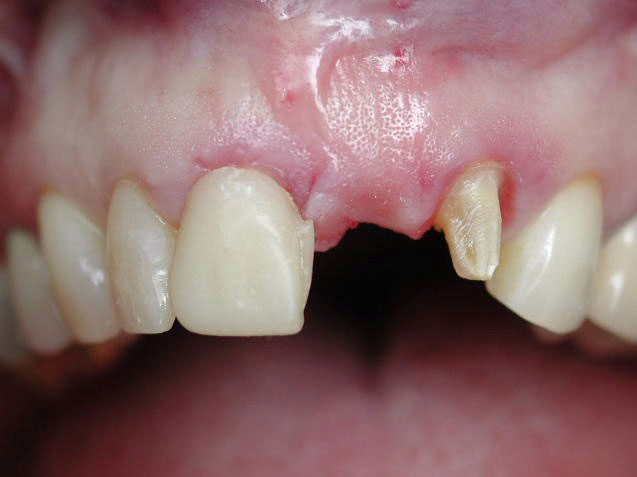 Arizona Institue for Periodontics and Dental Implants Aesthetic implant 15 Before