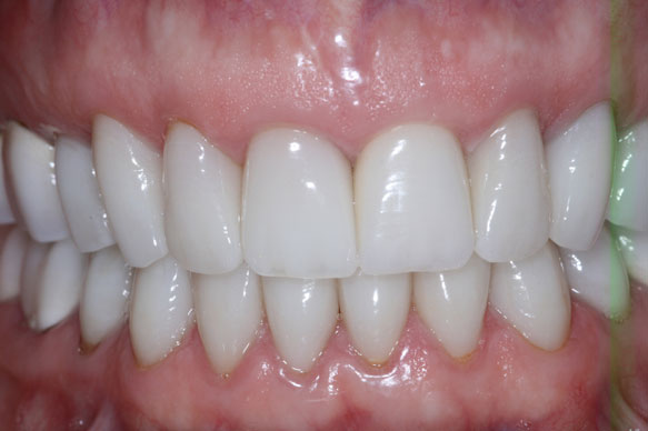 Arizona Institue for Periodontics and Dental Implants Aesthetic implant 16 After
