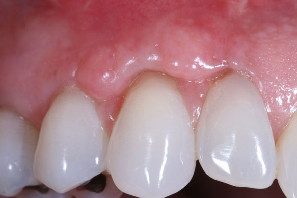 Arizona Institue for Periodontics and Dental Implants Aesthetic tissue graft 20 After