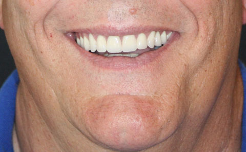 Arizona Institue for Periodontics and Dental Implants All on 4 Implants 10 After