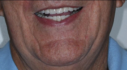 Arizona Institue for Periodontics and Dental Implants All on 4 Implants 6 After