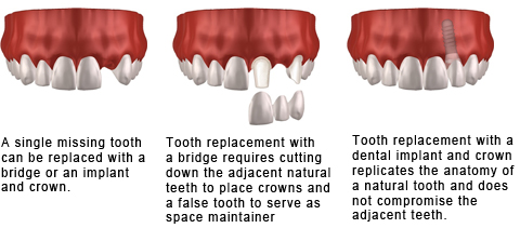 arizona implant and perio single tooth replacement