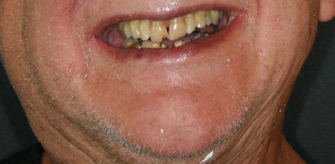 arizona implant and perio smile gallery 3