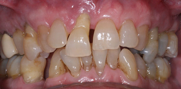 Before All-on-4 dental implant treatment
