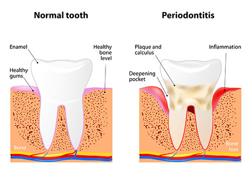 Side by side cross-section diagram of a healthy tooth and a tooth suffering from periodontal disease