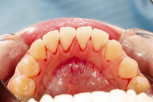A close up of a patients  mouth suffering from severe gum recession.